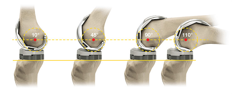 knee implant surgery