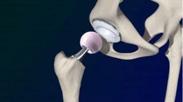 mako hip replacement