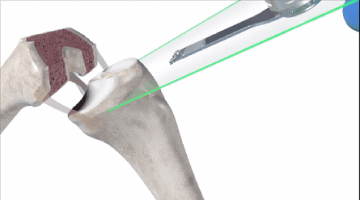 robotic assisted partial knee replacement