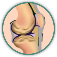 arthritis knee treatment