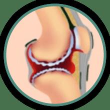 hip arthritis symptoms