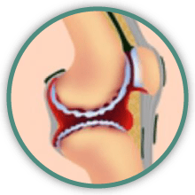 knee arthritis surgery