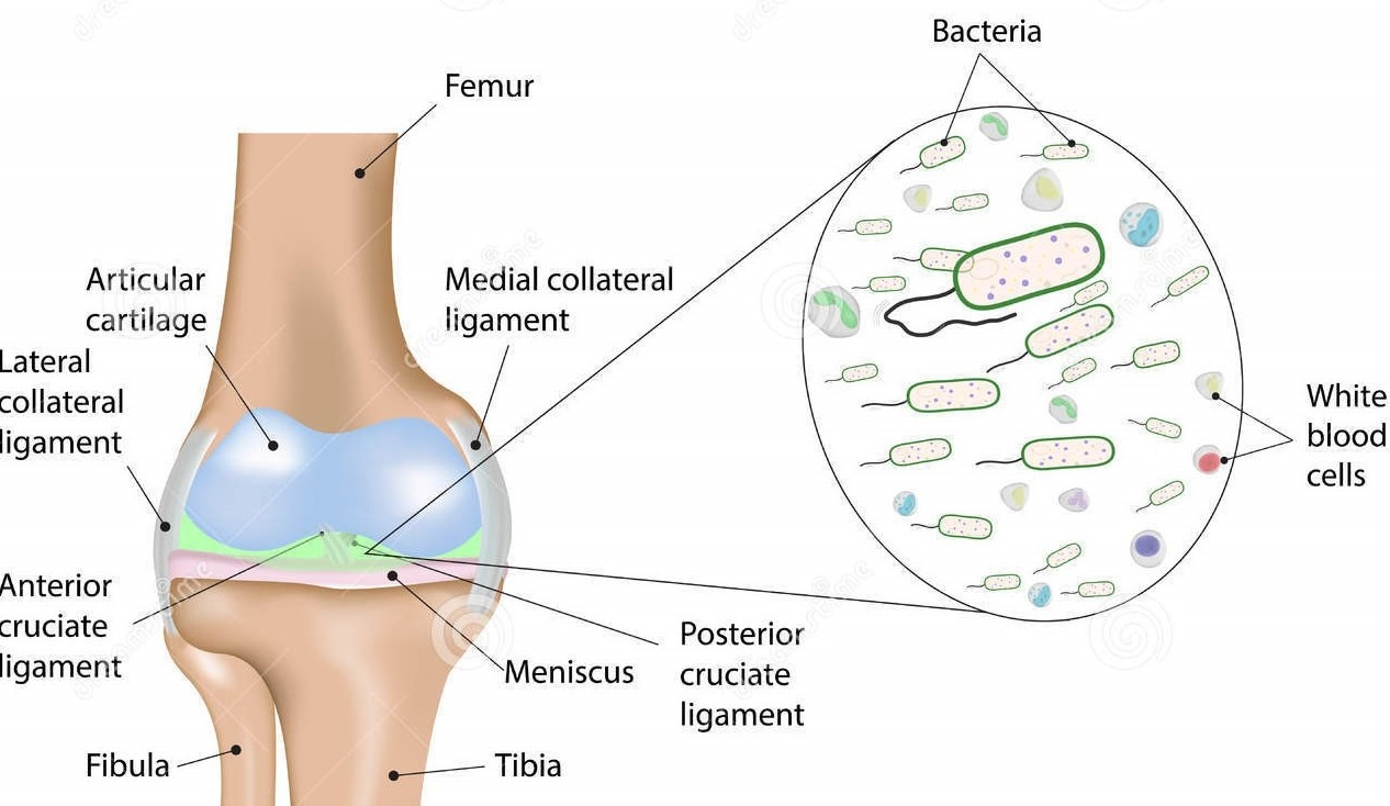Knee Infections